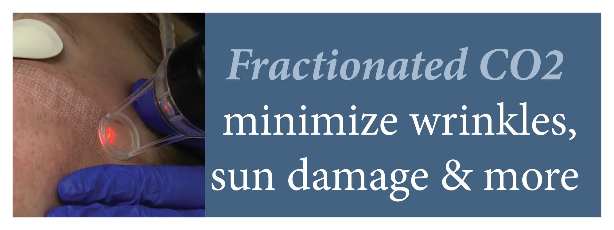 Fractional CO2