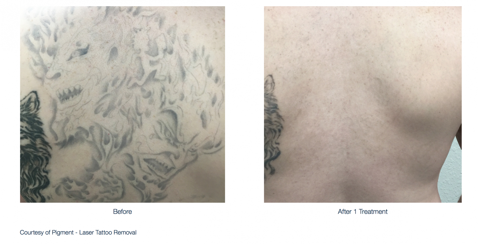 The Lumenis Piqo4 tattoo - Durango, CO Dermatologist
